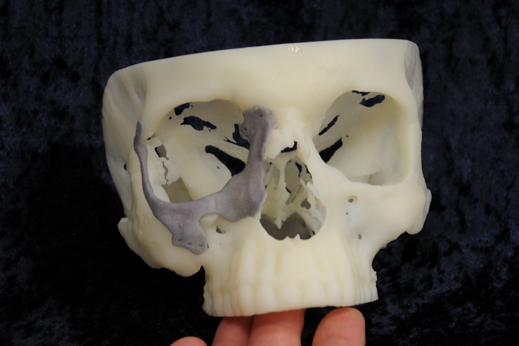 Realize Video Medical Applications Of 3d Printing
